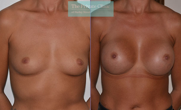 breast enlargement augmentation implants before after photo results mr adrian richards front 012AR
