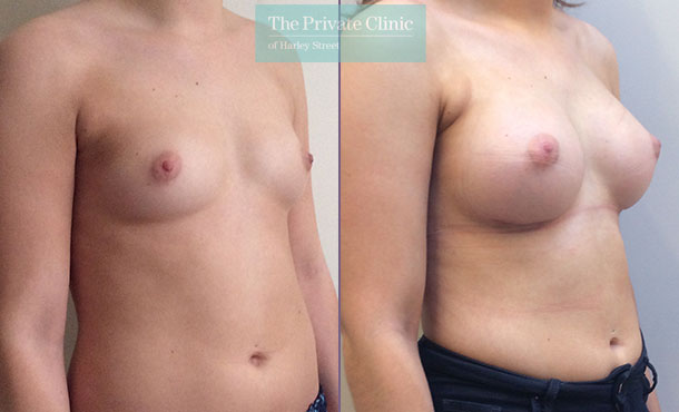 breast enlargement implants surgery before after photos mr davood fallahdar angle 007DF