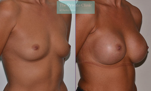 breast enlargement implants surgery before after results mr adrian richards angle 012AR