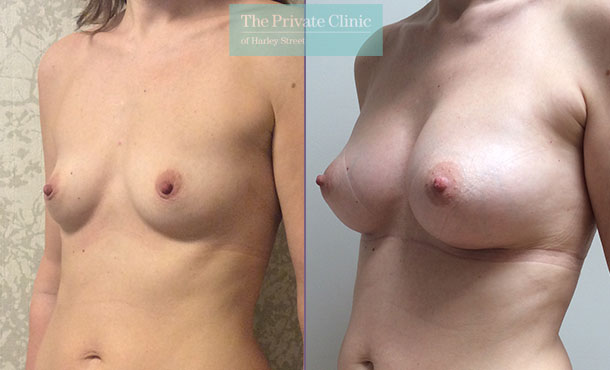 breast enlargement implants surgery before after results mr davood fallahdar angle 008DF