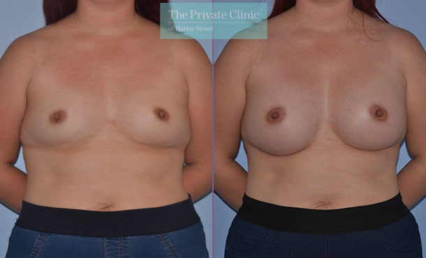 breast enlargement implants surgery london before after photo results mr adrian richards front 004AR
