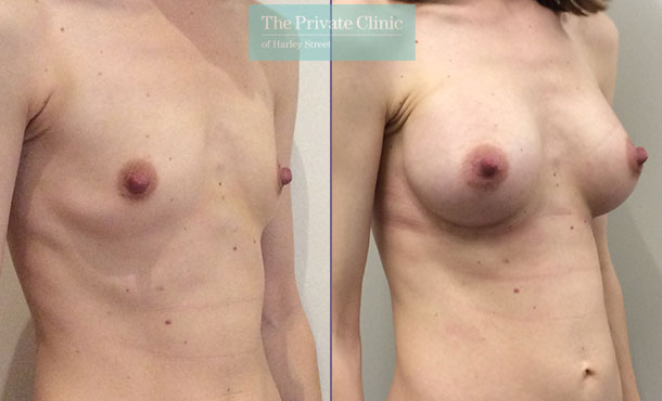 breast enlargement implants surgery uk before after photo results mr davood fallahdar angle 001DF