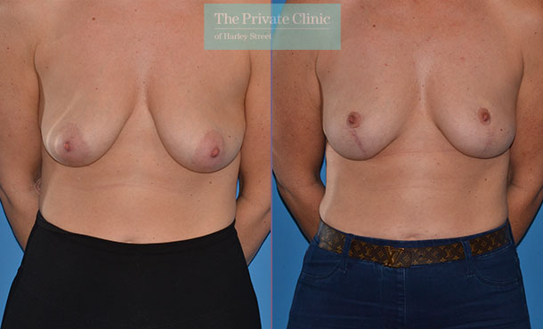 breast lift dropping breasts surgery before after results photos mr adrian richards front 021AR