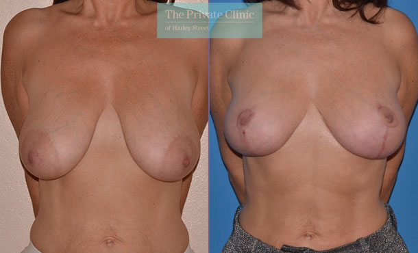 breast lift mastopexy before after photos uk mr adrian richards front 022AR
