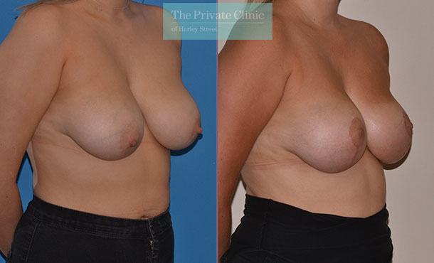 breast lift mastopexy surgery before after results photos mr adrian richards anglet 019AR