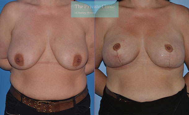 breast lift mastopexy surgery before after results photos mr adrian richards front 023AR