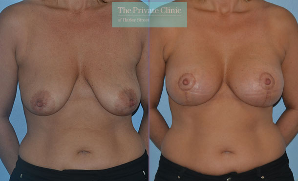 breast lift mastopexy surgery before after results photos mr adrian richards front 025AR