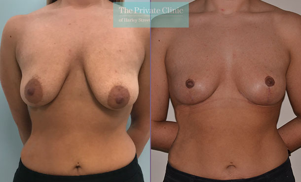 breast lift mastopexy surgery before after results photos mr adrian richards front 026AR