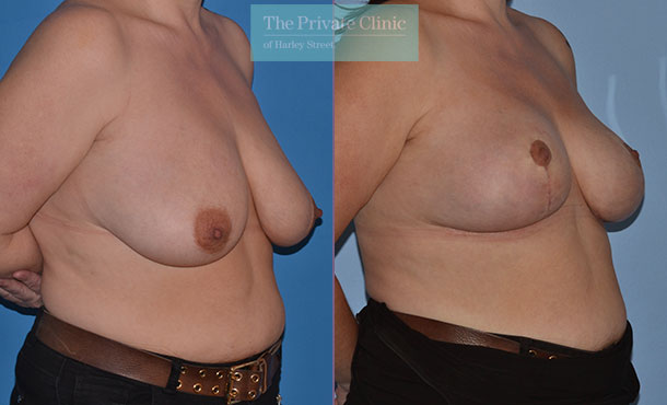 breast lift surgery before after results uk mr adrian richards angle 023AR