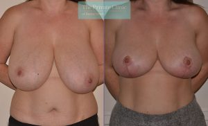 breast reduction surgery before after results photos mr adrian richards front 027AR