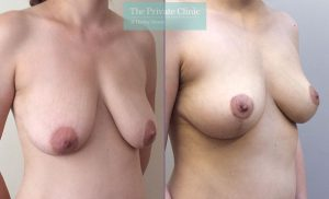 breast reduction surgery before after results photos mr davood fallahdar angle 009DF