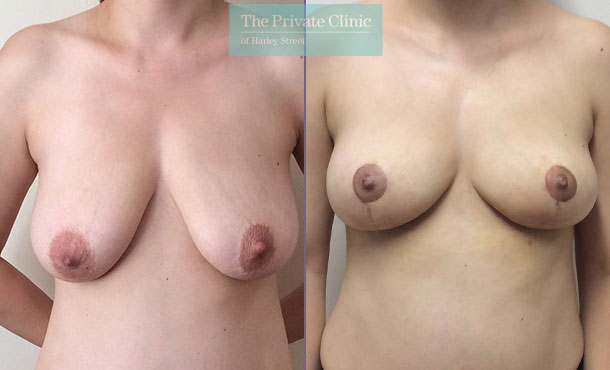 breast reduction surgery before after results photos mr davood fallahdar front 009DF