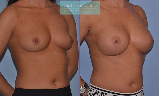 breast surgery augmentation enlargement implants before after results mr adrian richards angle 006AR