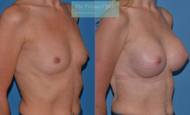 breast surgery augmentation enlargement implants before after results mr adrian richards angle 010AR