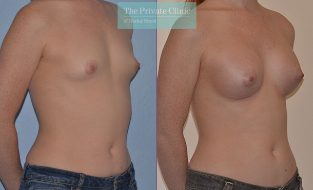 breast surgery augmentation implants before after results mr adrian richards angle 005AR