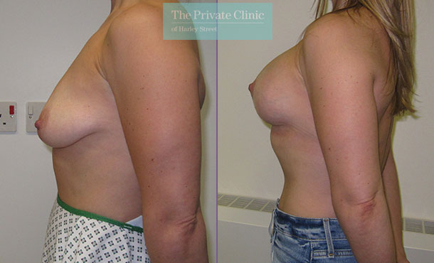 breast uplift mastopexy before after results photos birmingham mr maisam fazel side2 001MF