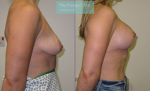 breast uplift mastopexy surgery before after results photos birmingham mr maisam fazel side 001MF