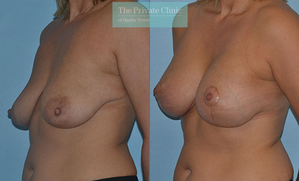 breast uplift sagging breasts before after results photos mr adrian richards angle 025AR