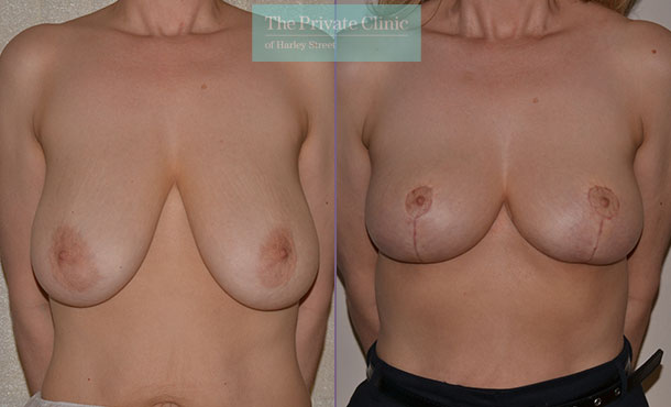 breast uplift sagging breasts surgery before after results photos mr adrian richards front 020AR