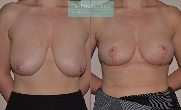 breast uplift surgery before after photos uk mr adrian richards front 024AR