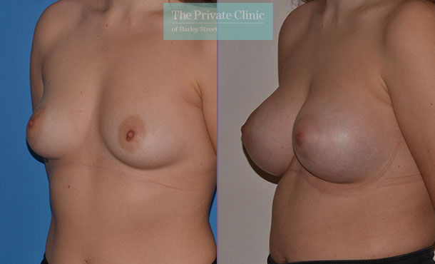 correcting breast asymmetry before after results angle Adrian Richards 054AR