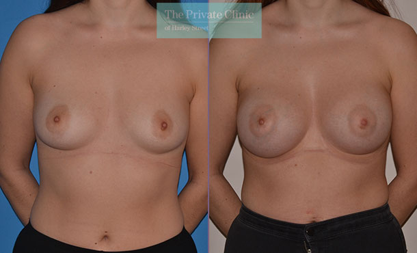 correcting breast asymmetry before after surgery results front Adrian Richards 054AR
