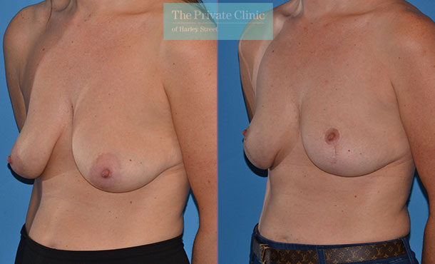 dropping breasts uplift mastopexy before after photo uk mr adrian richards angle 021AR