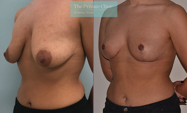 dropping breasts uplift mastopexy before after photos mr adrian richards angle 026AR