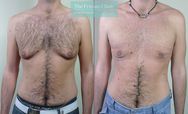 enlarged male breast reduction liposuction gynecomastia before after results photos mr roberto uccellini 025RU