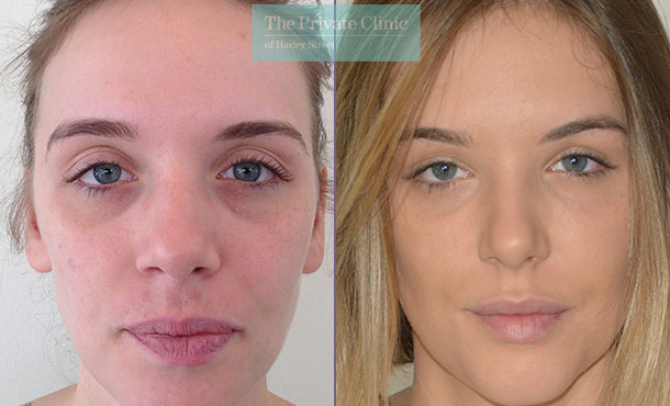 face fat transfer london facial rejuvenation lipofilling before after photos results mr roberto uccellini 005RU