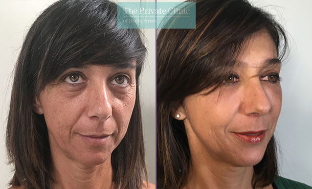 face fat transfer uk facial rejuvenation lipofilling before after results photos mr roberto uccellini angle 001RU