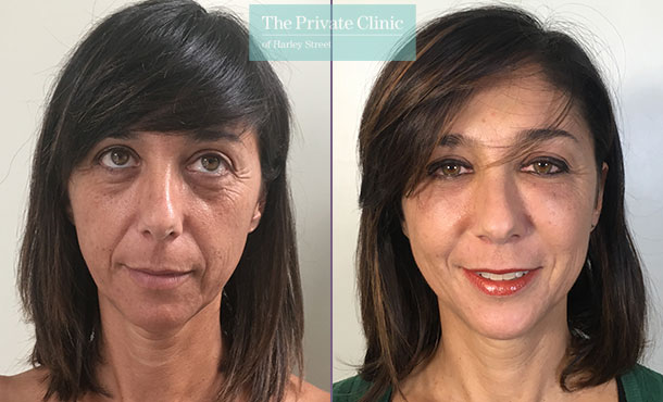 facial fat grafting fat transfer face lipofilling before after photos results mr roberto uccellini front 001RU
