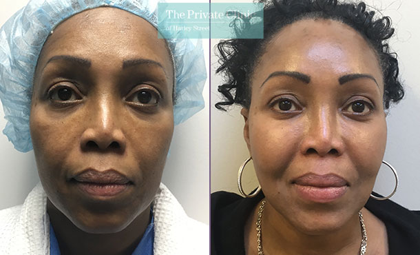 fat transfer face inejctions facial rejuvenation lipofilling before after results photos mr roberto uccellini front 002RU