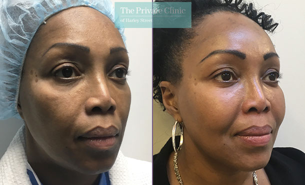 fat transfer face injection facial rejuvenation lipofilling before after results photos uk mr roberto uccellini angle 002RU