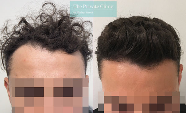fue hair transplant follicular unit extraction before after results mr michael mouzakis 018MM
