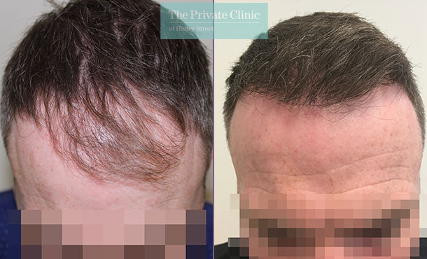 fue hair transplant procedure before after results mr michael mouzakis front 013MM