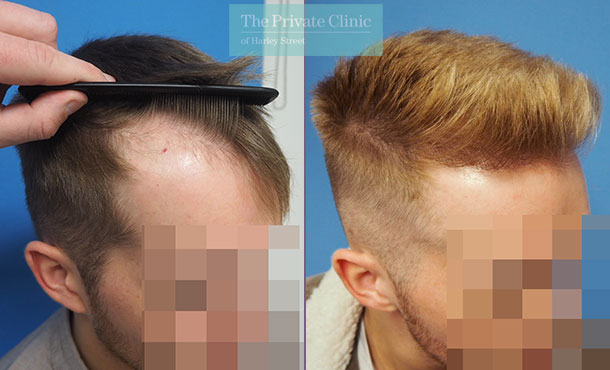 fue hair transplantation before after photo results mr michael mouzakis side 016MM