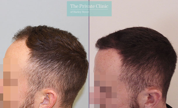hair transplant before after results mr michael mouzakis side 021MM