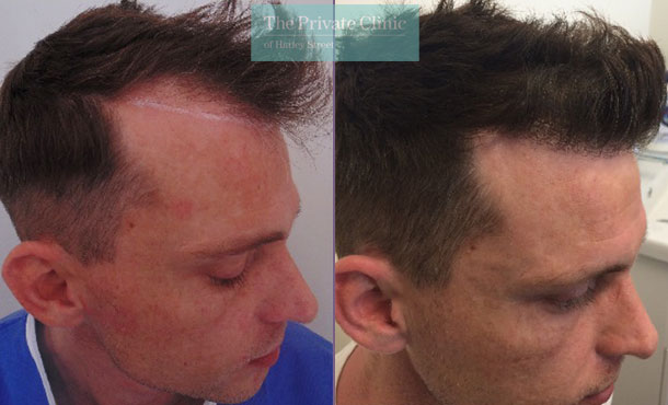 hair transplant procedure before after photos results mr michael mouzakis side 001MM