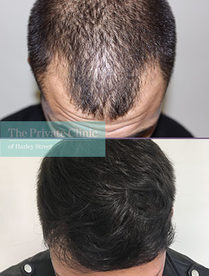 hair transplant procedure bristol before after photo results mr michael mouzakis 006MM