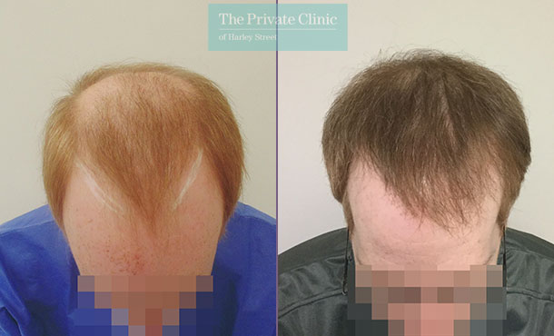 hair transplant procedure fue before after results mr michael mouzakis front 002MM