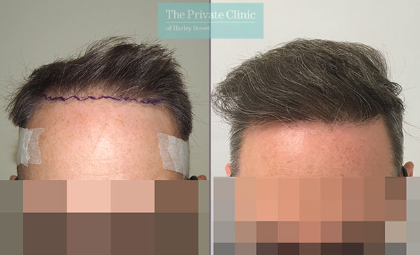 hair transplant treatment before after photo results mr michael mouzakis front 014MM