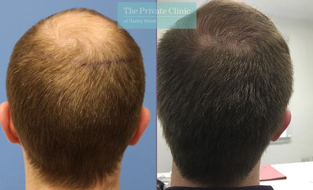 hair transplantation bristol before after photos results mr michael mouzakis 008MM