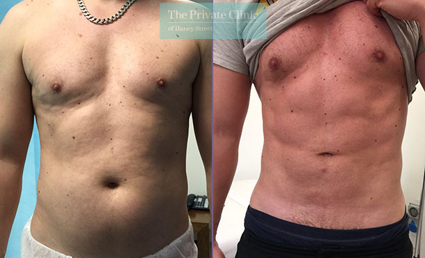 high def vaser liposuction lipo male before after results photos uk the private clinic 002TPC