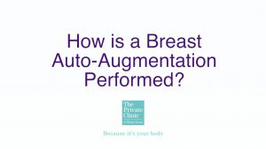 how auto augmentation performed