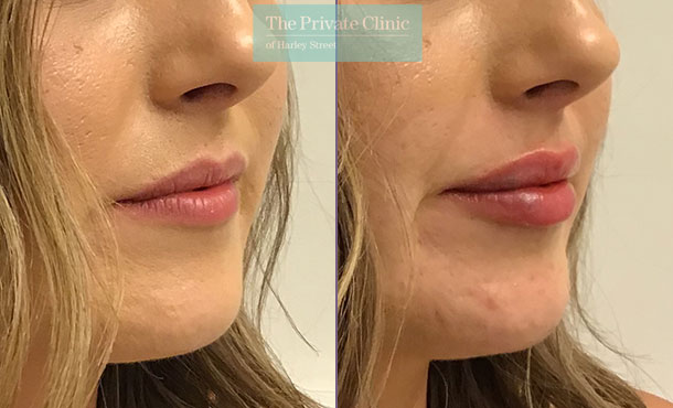 lip augmentation fillers before after photos dr hanson side 001HHY