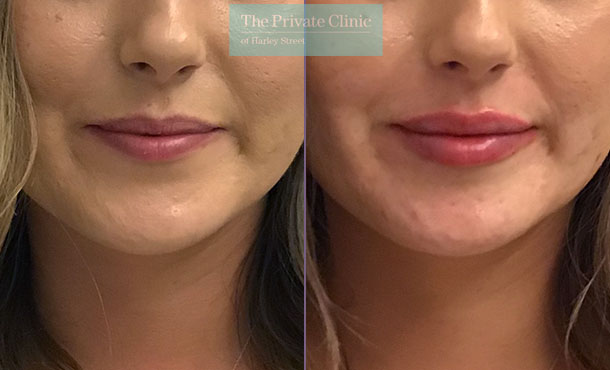 lip fillers injection before after photos london dr hanson front 001HHY