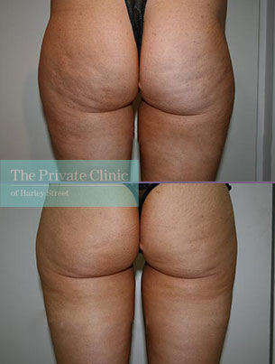 lipo 360 buttocks vaser liposuction before after results photos dr dennis wolf 020DW