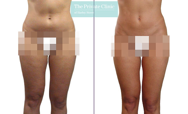 lipo lipoplasty liposuction inner thighs traditional surgical before after photos results mr roberto uccellini front 016RU