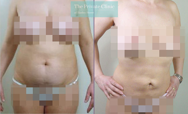 lipo lipoplasty stomach liposuction traditional surgical before after photos results mr roberto uccellini front 026RU
